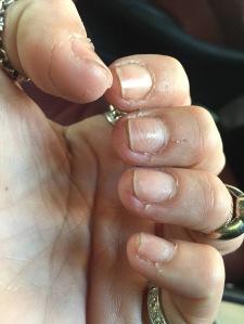 i dont hv biting nails habit but i started to peel